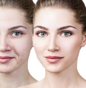 Wrinkle Reduction and Skin Rejuvenation with Venus Viva and Venus Swan